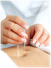 Acupuncture support IVF